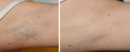 Laser Hair Removal Coolglide Dermahealth Houston Texas