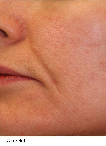 Acne Scar Treatments Gallery Dermahealth